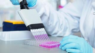 BB Biotech, Engie, Gold und Silber: Die Anlagetipps der Woche