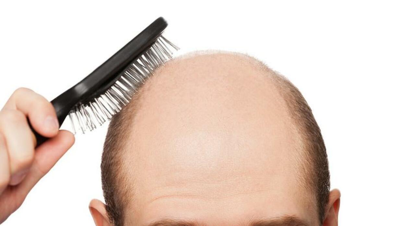 Us Studie Haare Ausreissen Schutzt Vor Glatze